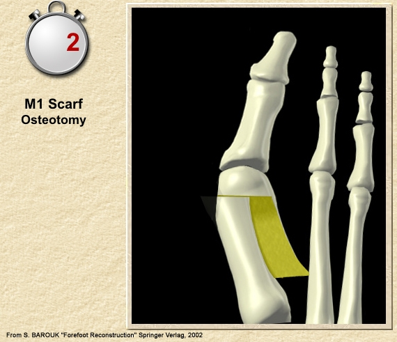 stage 2 scafr osteotomy